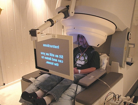 magnetoencefalografia1