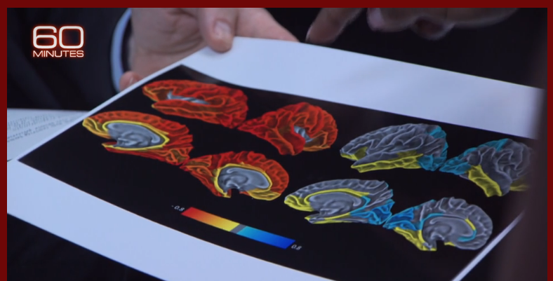 cerebro estimulado por telas